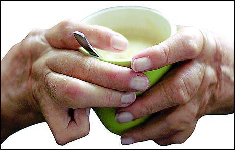 El Alcanfor y aceite de mostaza para la artritis