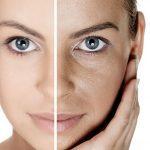 Remedios caseros para una piel perfecta
