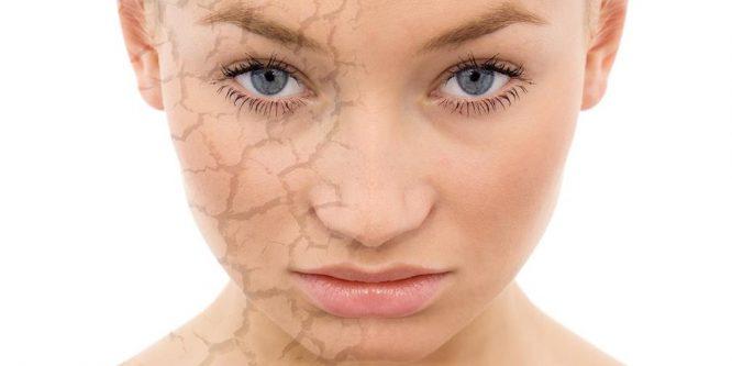 ¿Cómo resolver los problemas de la piel seca con la miel?