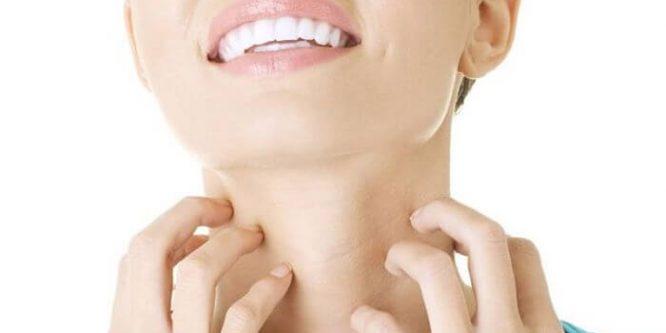 Cómo Curar los hongos de la piel con remedios caseros
